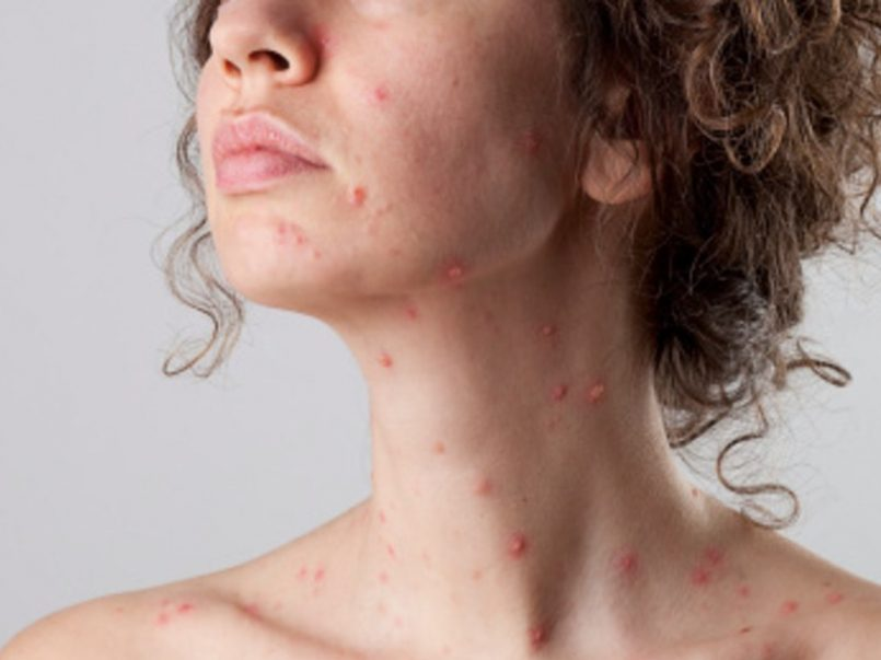 Aumentan-los-casos-de-sarampión-en-el-Edomex