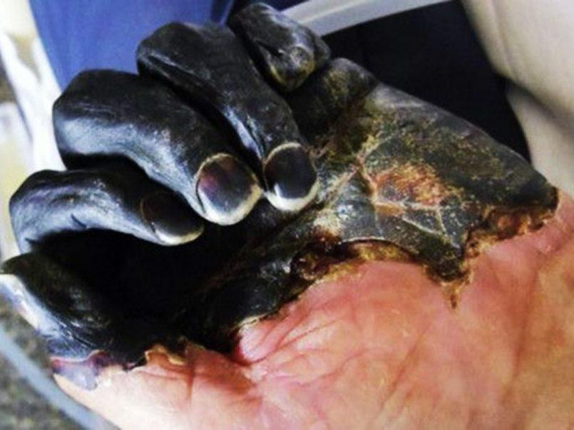 Mongolia cierra frontera con Rusia por dos casos de peste negra