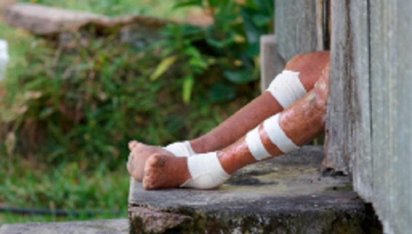 Lanzan alerta nacional en México debido a la aparición de varios casos de lepra en 18 estados de la República.