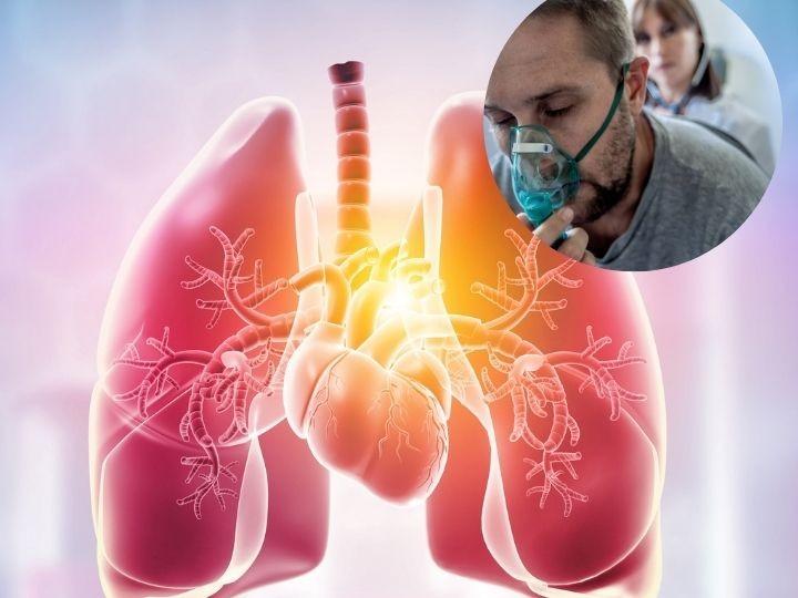 VEXAS nueva enfermedad mortal que no responde a tratamientos